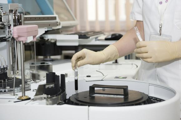 Ya son 106 los muertos por el coronavirus — China